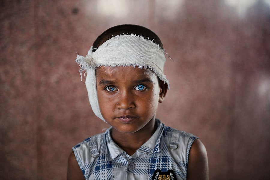 Eyes - India