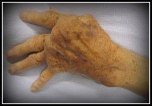Rheumatoid_Arthritis 1